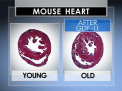 Mouse heart2_Via CBS